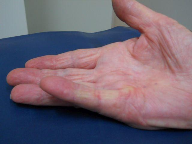Dupuytren before surgery with little finger in flexed position